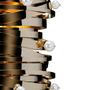 Suspensions - Pearl Suspension - LUXXU MODERN DESIGN & LIVING